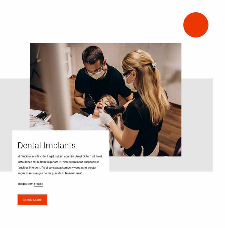 Dental implants Website Template